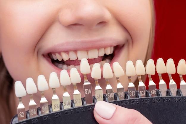 Garota no procedimento de clareamento dos dentes com a boca aberta