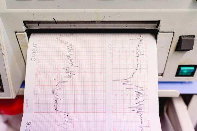 Gráfico com eletrocardiograma de uma mulher grávida durante um exame do hospital.