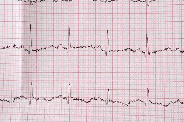 Gráfico de eletrocardiograma do coração ekg em papel especial. conceito de tomografia cardíaca, seguro saúde, antecedentes médicos, exames.