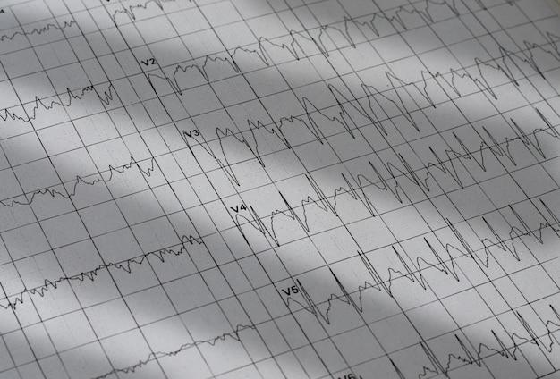 Gráfico de eletrocardiograma