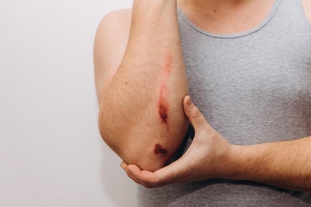 Grandes escoriações no antebraço de um homem após uma queda. o homem segura seu cotovelo com a mão.