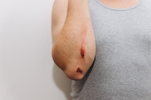 Grandes escoriações no antebraço de um homem após uma queda.