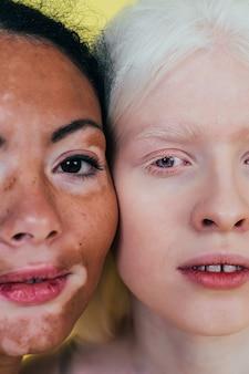 Grupo de mulheres multiétnicas com diferentes tipos de pele posando juntas em estúdio