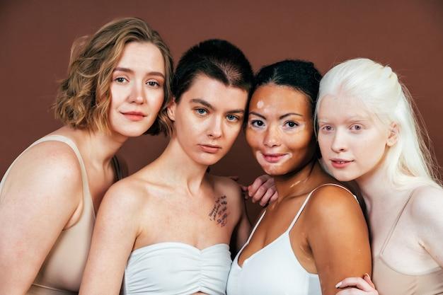 Grupo de mulheres multiétnicas com diferentes tipos de pele posando juntos no estúdio. conceito sobre positividade corporal e autoaceitação