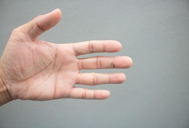 Hit mosquito com a mão