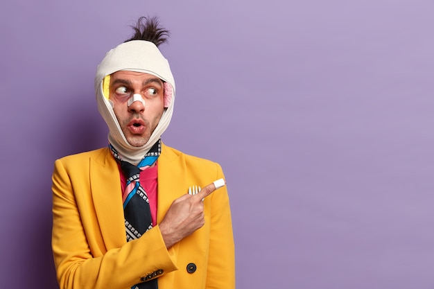 Homem adulto alegre com traumatismo na cabeça, nariz quebrado e hematomas sob os olhos