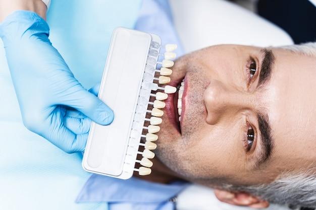 Homem alegre está deitado na cadeira enquanto o dentista o ajuda a escolher a cor antes do clareamento
