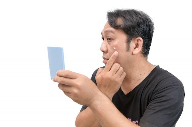 Homem, aplicando creme, ligado, rosto, com, melasma