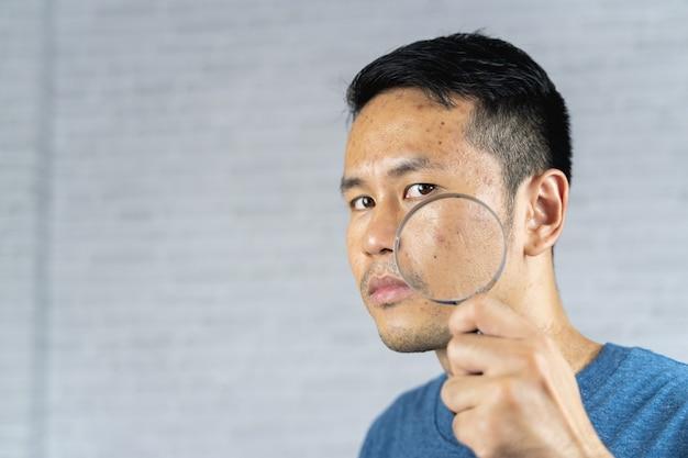 Homem apontando acne inflamada ocorre em seu rosto.