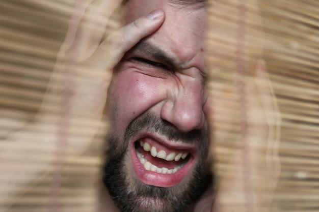 Homem barba com dor de cabeça