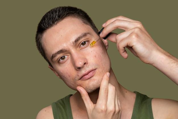 Homem bonito confiante com acne