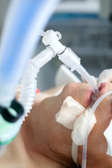Homem branco adulto intubado sob avl deitado em coma no departamento de terapia intensiva. paciente em estado crítico.