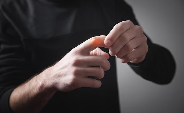 Homem caucasiano com dor no dedo.