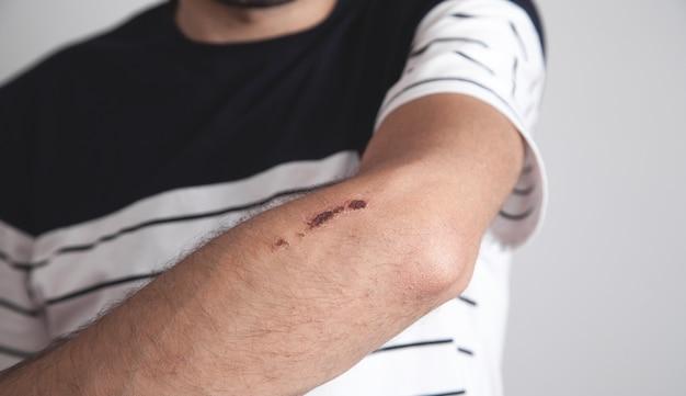 Homem caucasiano mostrando ferida. acidente