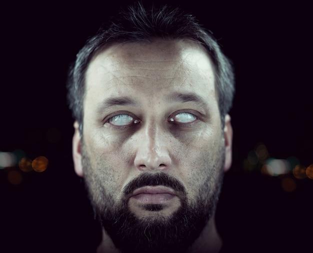Homem cego com olhos brancos
