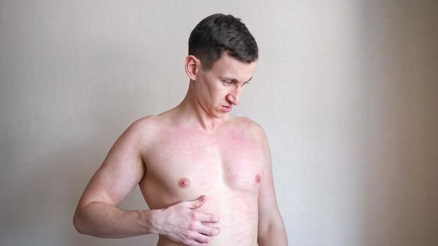 Homem chateado a coçar o peito com uma coceira irritante