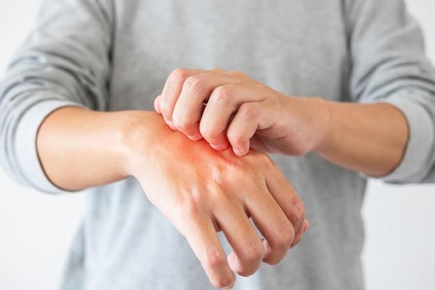 Homem coçando a mão de perto