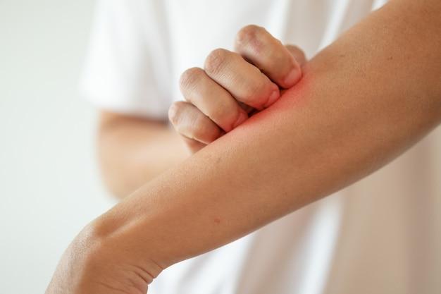 Homem coçando e coçando no braço devido à dermatite de eczema de pele seca e coceira