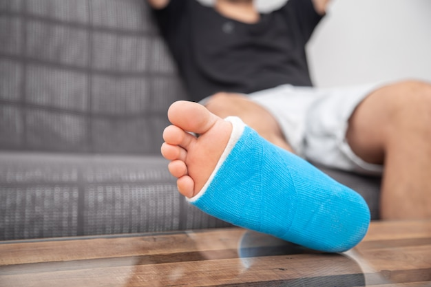 Homem com a perna quebrada engessada no sofá em casa. conceito de lesão esportiva.