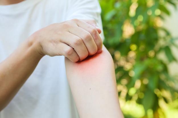 Homem com coceira e arranhões no braço devido a erupções cutâneas alérgicas causadas por picada de inseto ao ar livre
