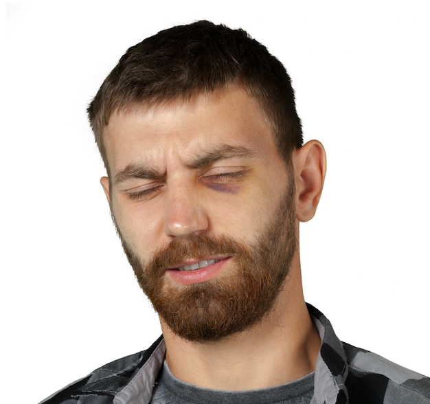 Homem com contusão de olho real
