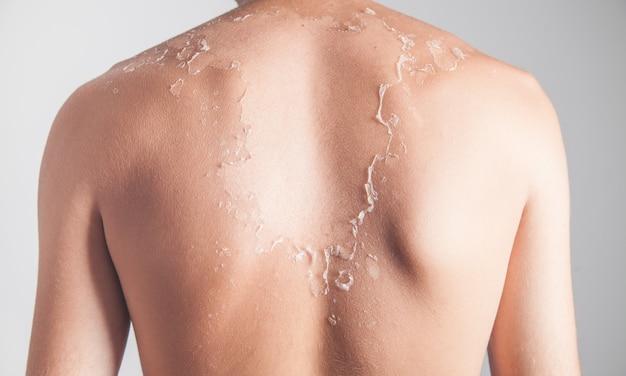 Homem com descamação da pele de queimaduras solares.