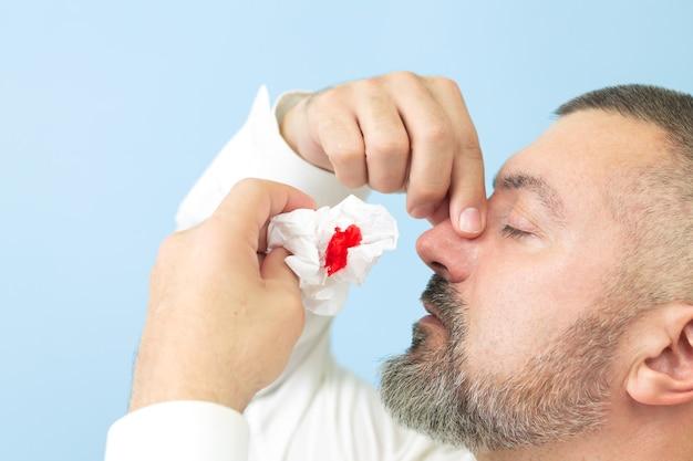 Homem com hemorragia nasal ou epistaxe e usando lenço de papel para parar o sangramento