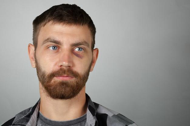 Homem, com, real, olho, hematoma