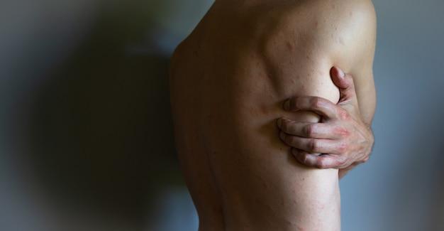 Homem com sintomas de urticária com coceira. cara coça as costas com a mão isolada em fundo cinza.