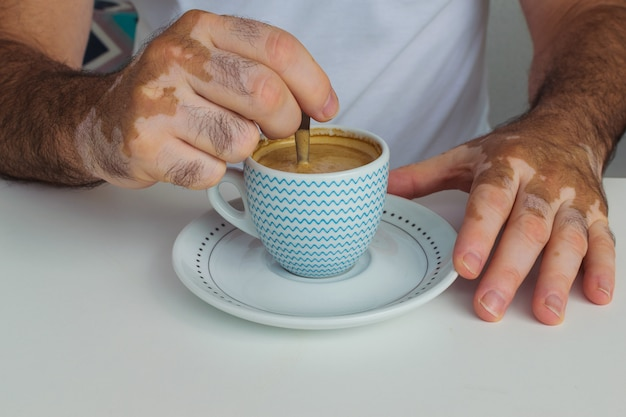 Homem com vitiligo segurando uma xícara de café
