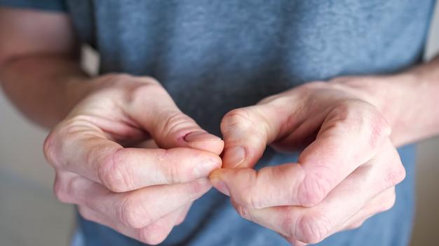 Homem de camiseta cinza arranhando a unha em um dedo sofrendo de neurose em um fundo bege desfocado em uma sala de luz extremamente estreita vista de corte