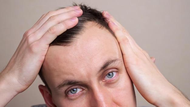 Homem examina uma careca na cabeça em um espelho em câmera lenta