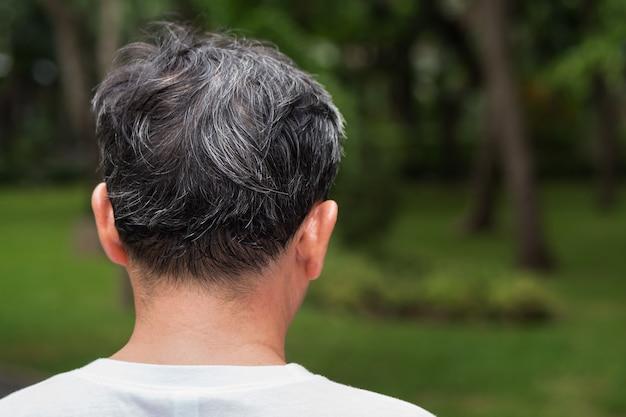 Homem idoso idoso ou de meia-idade com problema de cabelo grisalho