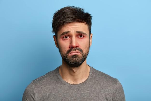 Homem infeliz e miserável tem aparência doentia, olhos vermelhos e inchados, rosto sorridente, sofre de conjuntivite, alergia sazonal, poses contra uma parede azul. pessoas, doenças, conceito de problemas de saúde.