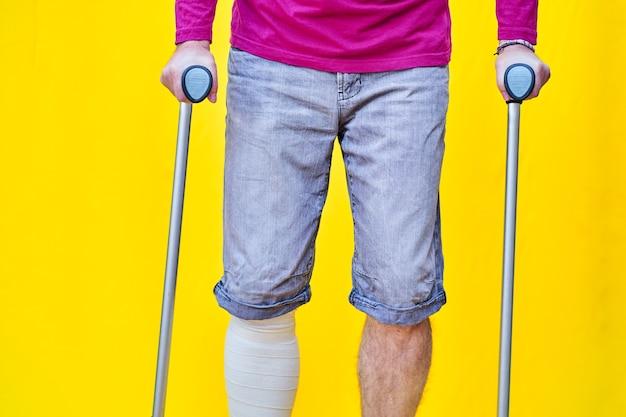 Homem irreconhecível de frente, vestindo bermuda roxa e muletas, com a perna enfaixada.