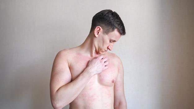 Homem jovem nervoso e chateado coça o peito nu com a mão, sofrendo de coceira na pele perto de uma parede bege em close-up claro de quarto de hospital