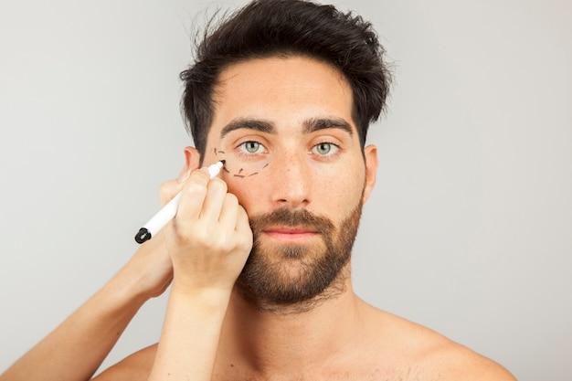 Homem pronto para cirurgia estética