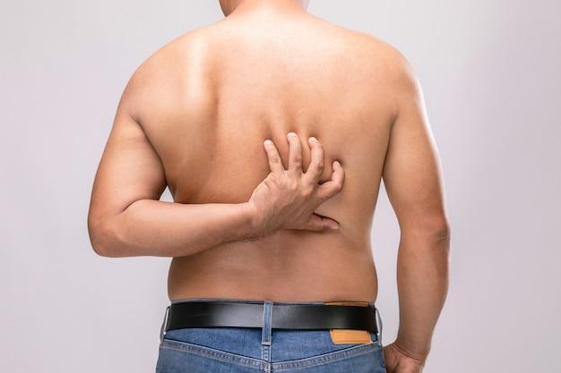 Homem sem camisa coçando as costas