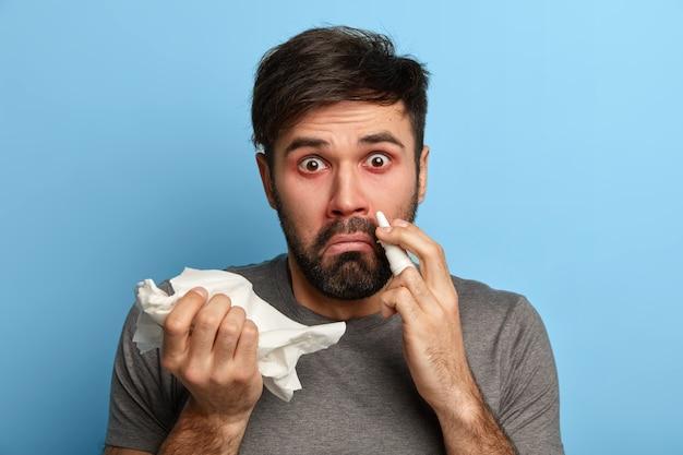 Homem surpreso com barba por fazer sofre de vírus da gripe sazonal, resfriado nasal, cura nariz entupido com gotas nasais, segura lenço, limpa o entupimento, tem rinite alérgica, sente-se mal