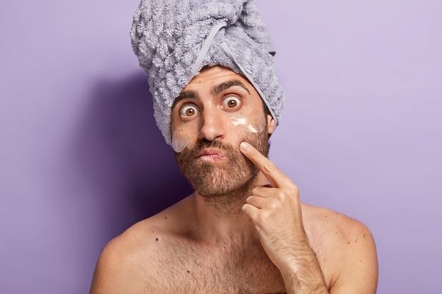 Homem surpreso nota acne no rosto, se preocupa com a boa aparência, aplica compressas anti-envelhecimento sob os olhos