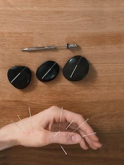 Homem usando tratamento de acupuntura para alívio da dor