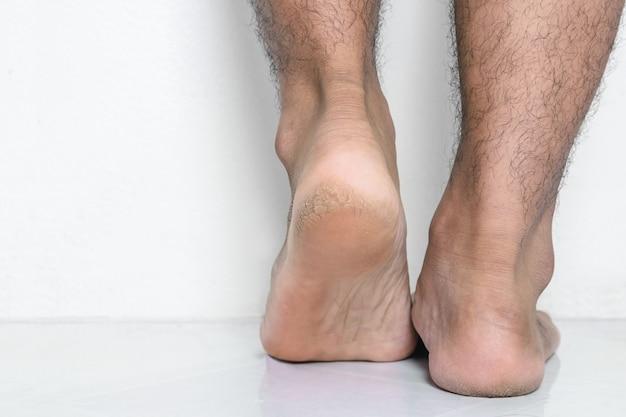 Homens, pés, pele, calcanhares rachados