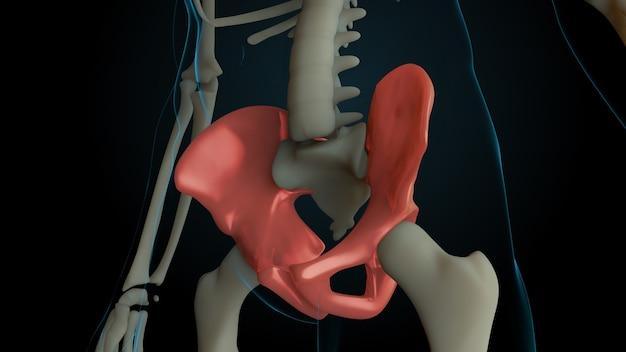 Ilustração 3d renderizada da estrutura do esqueleto com ossos feridos. a dor óssea é mostrada por um brilho vermelho. dor nos ossos da pelve.