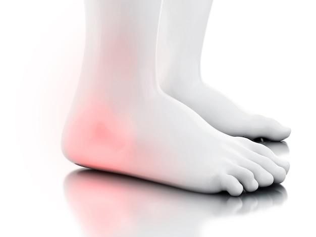 Ilustração 3d. tornozelo doloroso no fundo branco. conceito de medicina.
