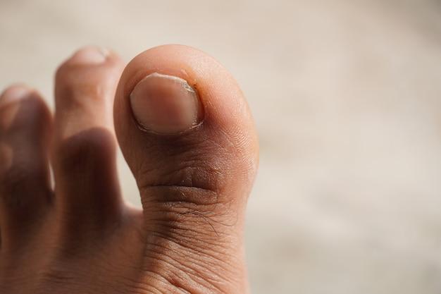 Imagem aproximada do dedo do pé