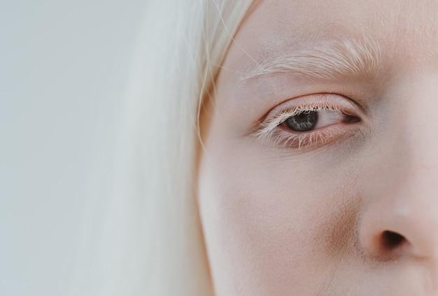 Imagem da beleza de uma garota albina posando em um estúdio usando lingerie