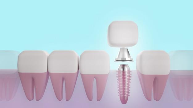 Imagem da rendição do implante dental 3d para o conteúdo médico.