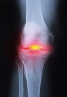 Imagem de articulação do joelho de raio x médico com artrite (gota, artrite reumatóide, artrite séptica