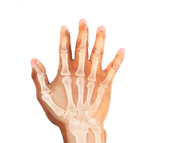 Imagem de raio-x da mão humana