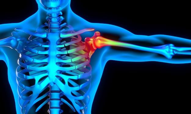 Imagem de raio-x de homem com problema no ombro